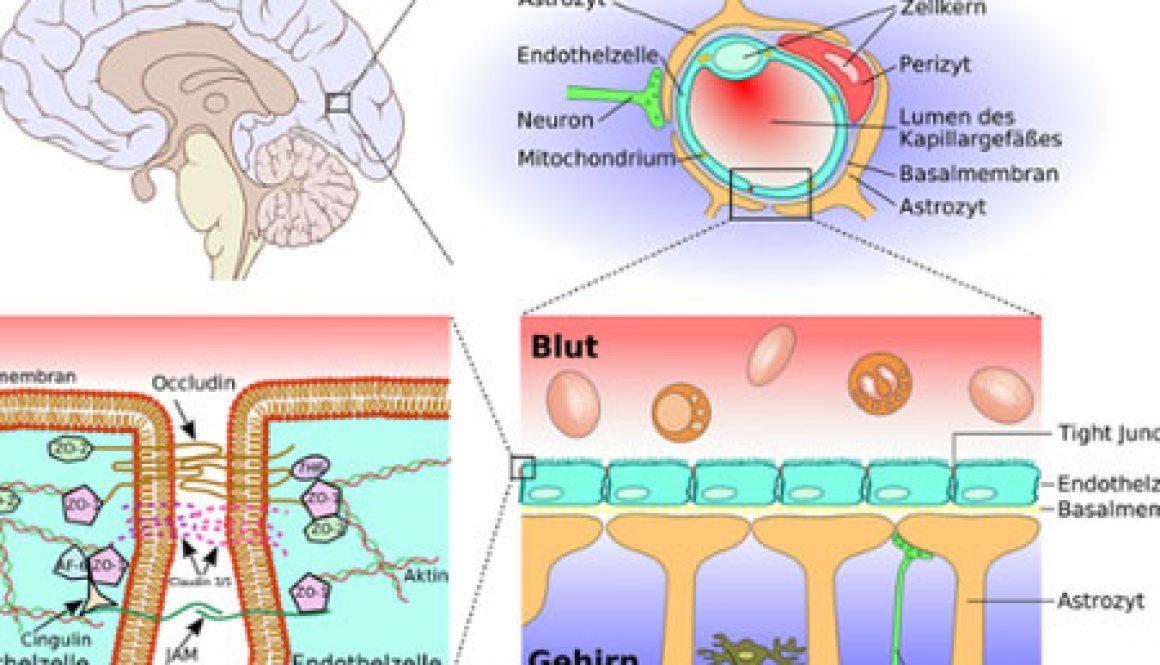blog-leaky-brain