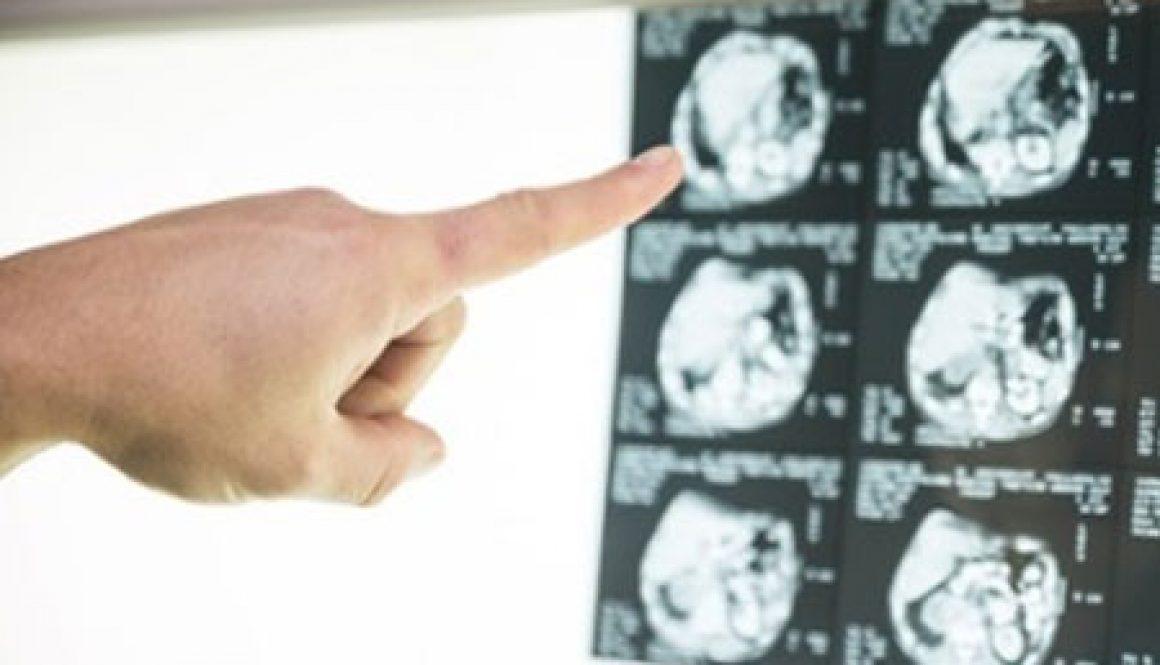 blog-what-is-neurofeedback